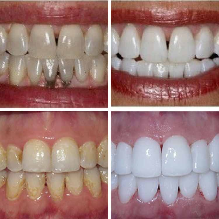 Limpieza dental antes y después