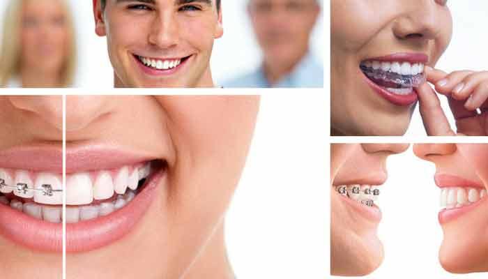 ortodoncista-zaragoza