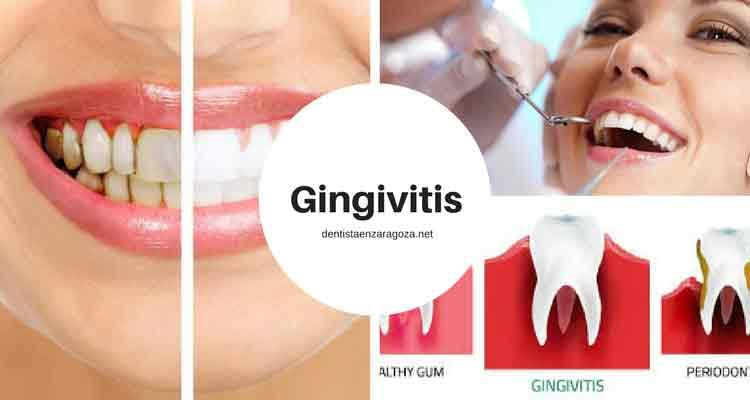 Tratamiento Gingivitis Zaragoza