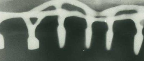 tipos-implantes-dentales