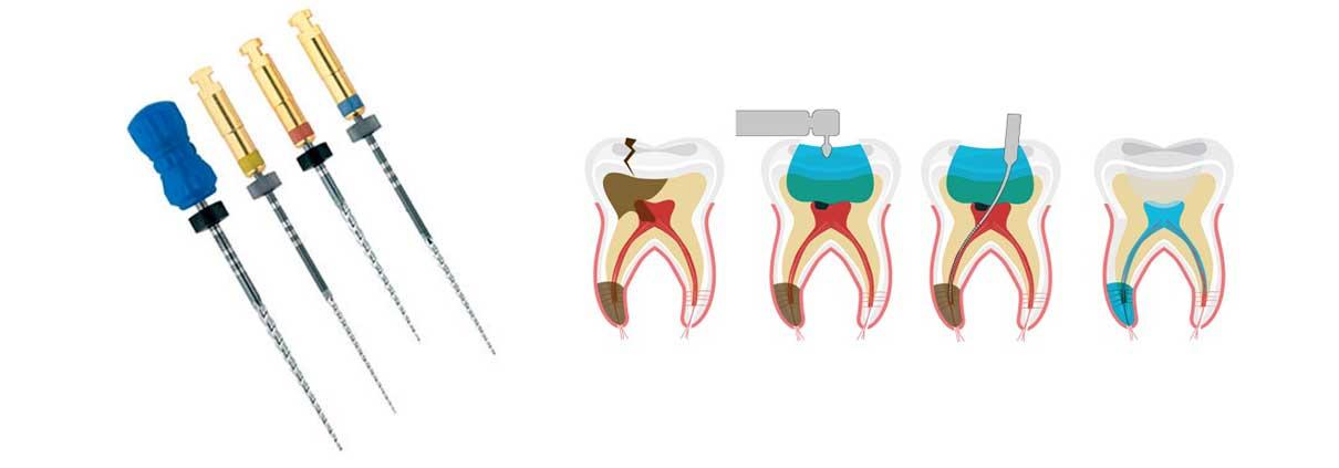 endodoncia-especialista-zaragoza