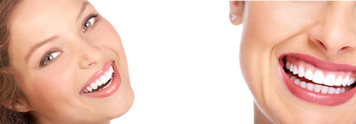 carillas-dentales-zaragoza