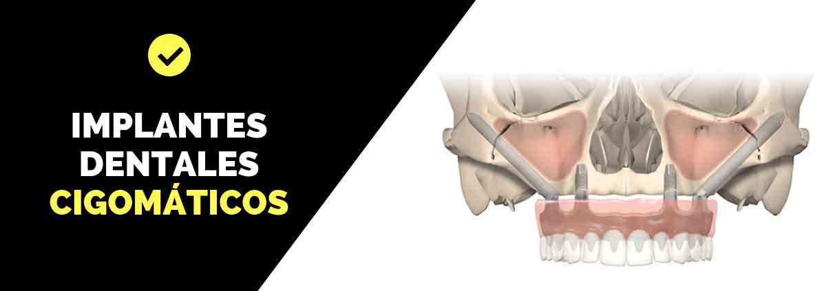 implantes-cigomaticos-zaragoza