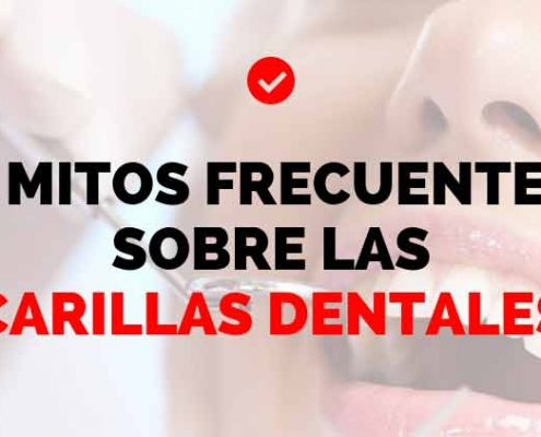 5 falsos mitos de las carillas dentales