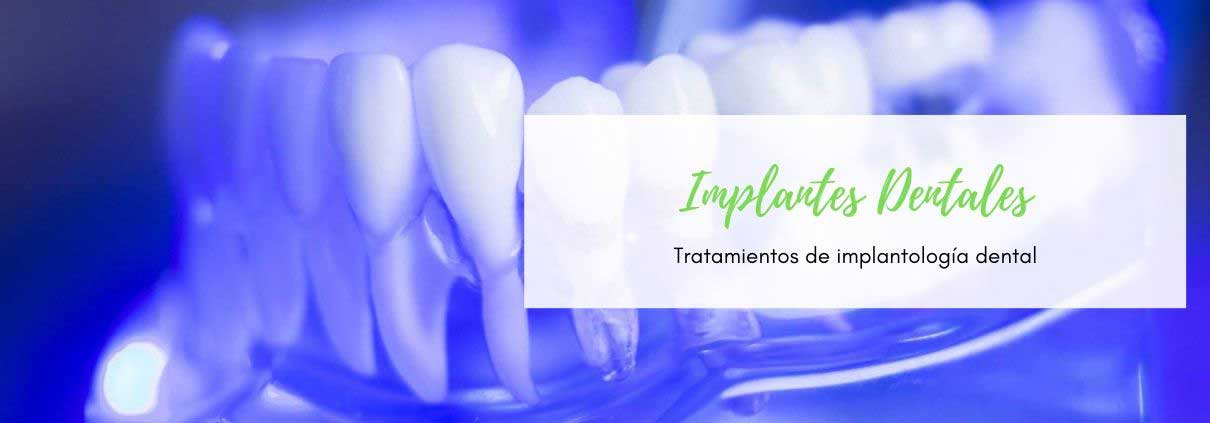 Especialistas en implantes dentales en Zaragoza