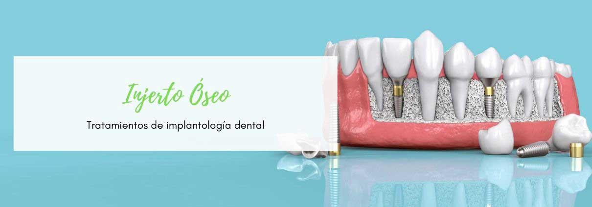 Procediminto de Injerto de Hueso dental