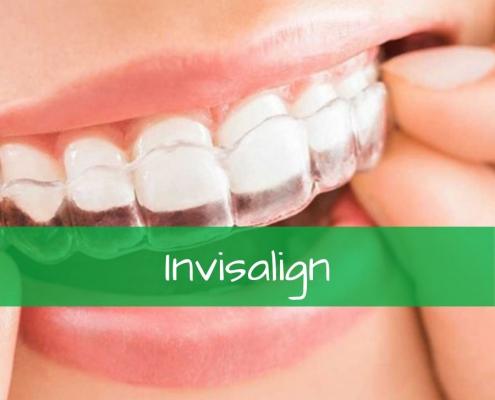 Fotos de antes y después de pacientes con Invisalign