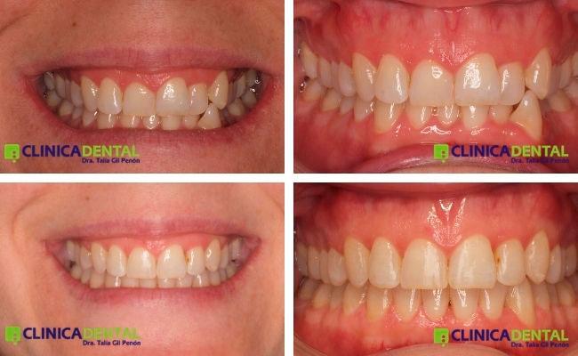 Antes y después de tratamiento adulto con ortodoncia invisible (apiñamiento)