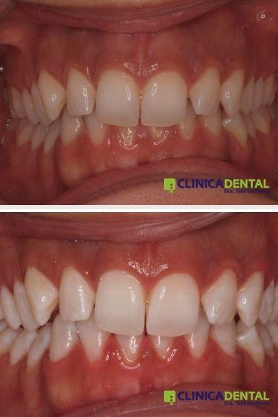 Blanqueamiento dental en clínica (antes y depúes)