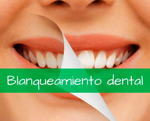 Tratamiento blanqueamiento dental antes y despúes