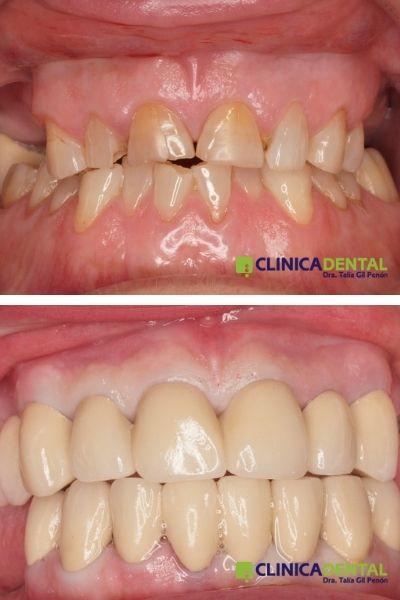 Rehabilitación oral con coronas de metal-cerámica.
