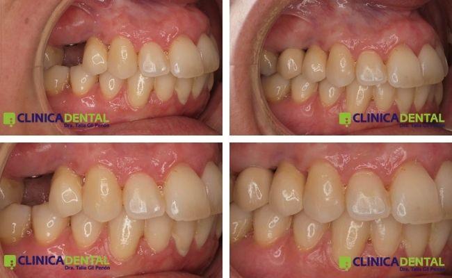 Implante unitario antes y después