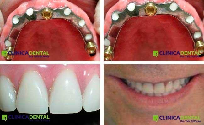 Sobredentadura sobre barra fresada sobre 6 implantes