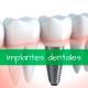 Antes y después de implantes dentales