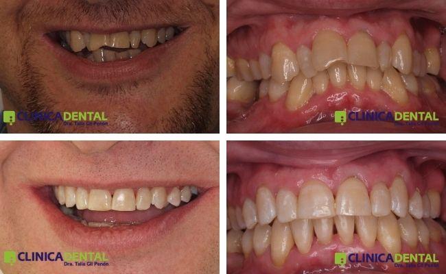 Paciente adulto ortodoncia Damon