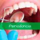 tratamientos periodoncia