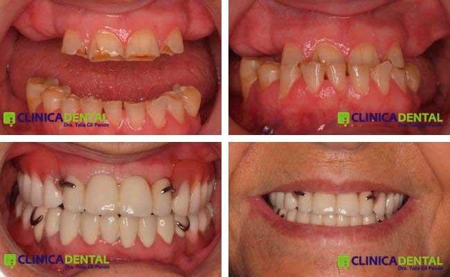 Paciente de la 3ªedad con ausencias múltiples y gran desgaste dentario. Rehabilitación oral con Prótesis mixta (fija+removible)