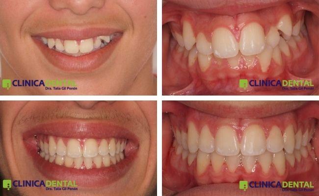 Paciente adolescente, apiñamiento., ortodoncia Damon.